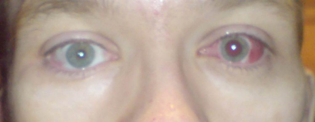dan eye surgery 1024x398 - Ch 36: Hormones